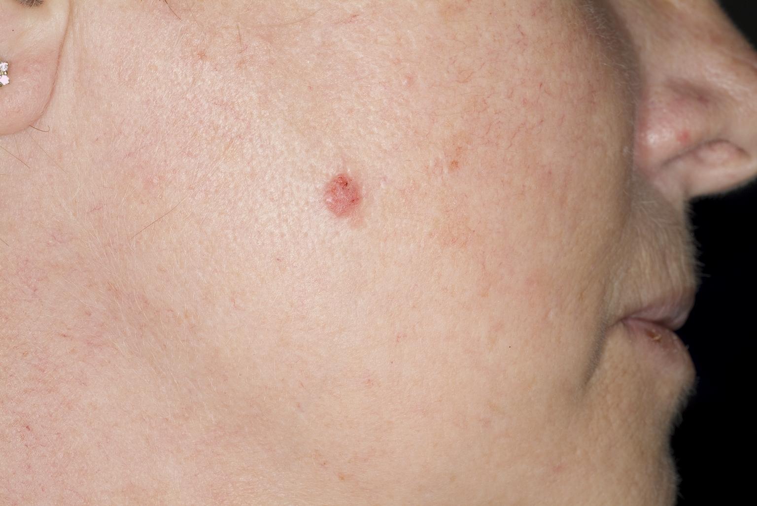 raar plekje op de huid